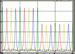 Variable Compression Ratio
